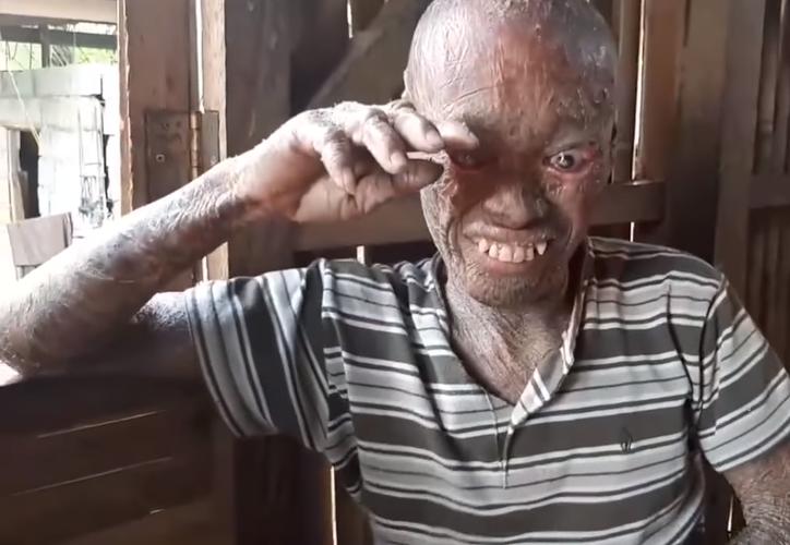 La enfermedad que Antonio padece desde que nació se llama ictiosis. (Captura de pantalla/Youtube)