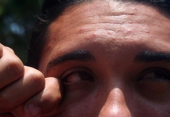 El aire contaminado puede causar esta enfermedad oftalmológica. (Archivo)