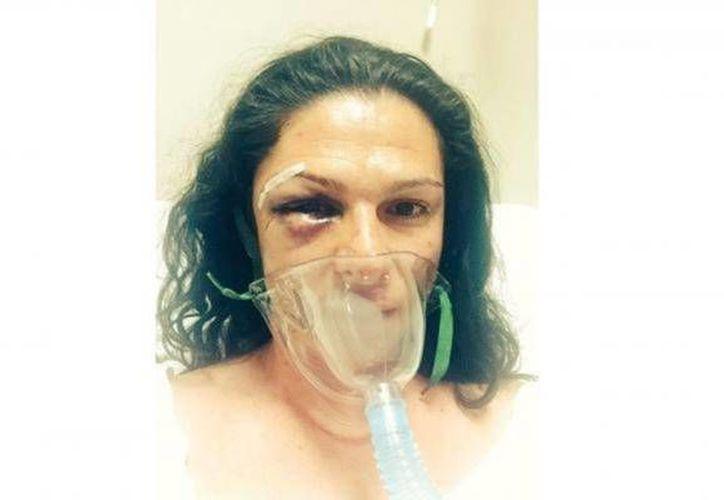 La senadora y exvelocista Ana Guevara iba en moto cuando fue atropellada y luego golpeada por cuatro hombres. Uno de ellos al parecer era policía. (Foto tomada de regeneracion.mx)