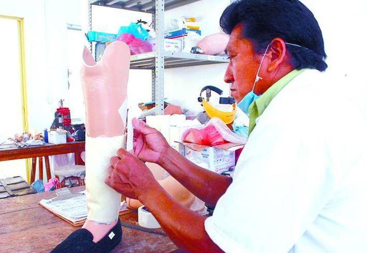 Cropafy indicó que cada vez es mayor la demanda de prótesis en la entidad. (Milenio Novedades)