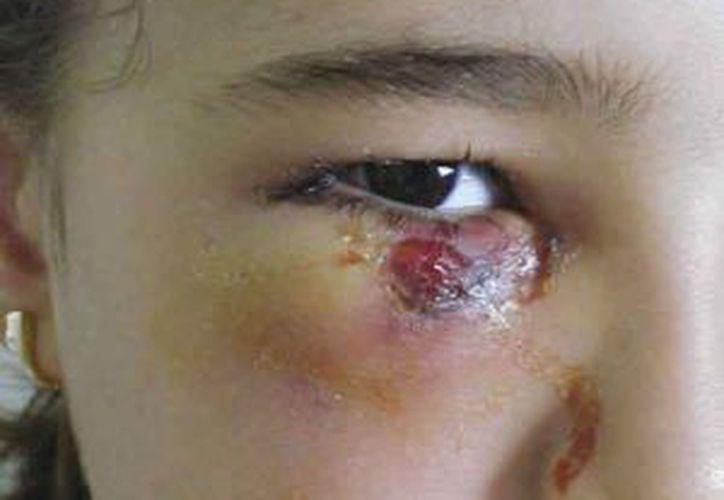 El Mal de Chagas suele producir erupciones en las zonas de la picadura. (Agencias)