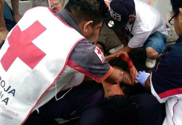 Los paramédicos de la Cruz Roja valoraron al lesionado. (Redacción/SIPSE)