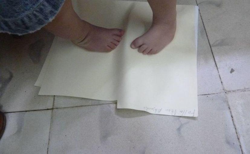 En 17 años, los especialistas han operado a 816 pacientes y recibido en consulta a 4,080 personas por afecciones en los pies. (Cortesía)