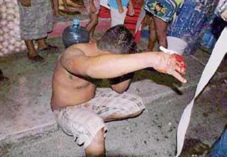 """Antonio """"N"""", de 26 años, resultó mordido en la mano derecha por un perro callejero. (Redacción/SIPSE)"""