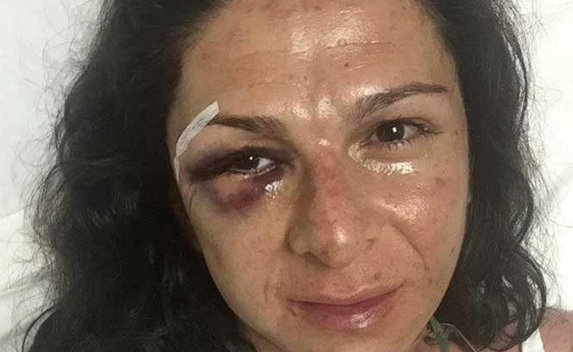 La senadora Ana Gabriela Guevara fue sometida a cirugía por las lesiones que sufrió en un ataque. (Excélsior)