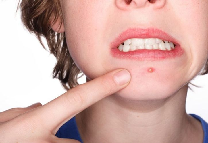Tratamientos con antibióticos no son para todos los que padecen de acné. (Vanguardia)