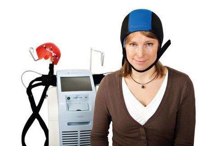 Según publica Psycho Oncology, la pérdida de cabello es uno de los efectos más traumáticos para las mujeres. (Milenio)