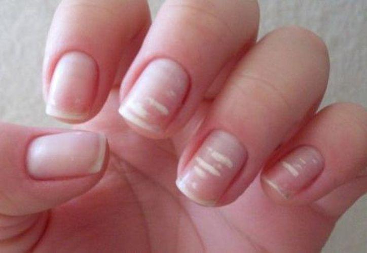 Las manchas blancas en tus uñas no representan un peligro para tu salud. (Especial)