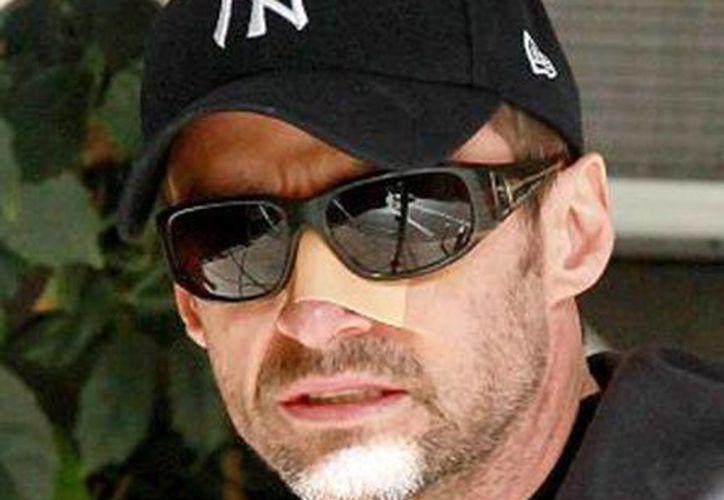 Hugh Jackman fue visto con la nariz cubierta tras la intervención, paseando por Nueva York. (elpais.com)