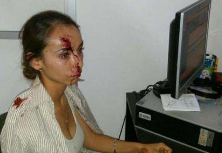 La reportera Karla Silva fue objeto de una severa agresión en la redacción del periódico El Heraldo, en León, donde trabaja. (Foto tomada de facebook.com)