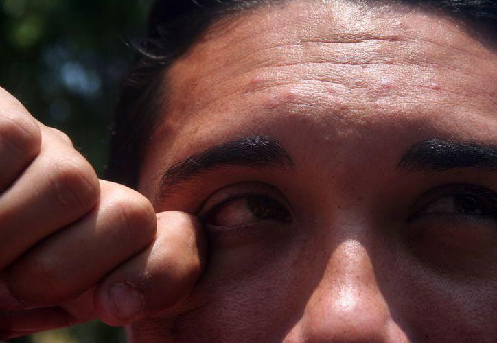 Autoridades sanitarias afirman que se está controlando el brote de conjuntivitis. (Foto: Milenio Novedades)
