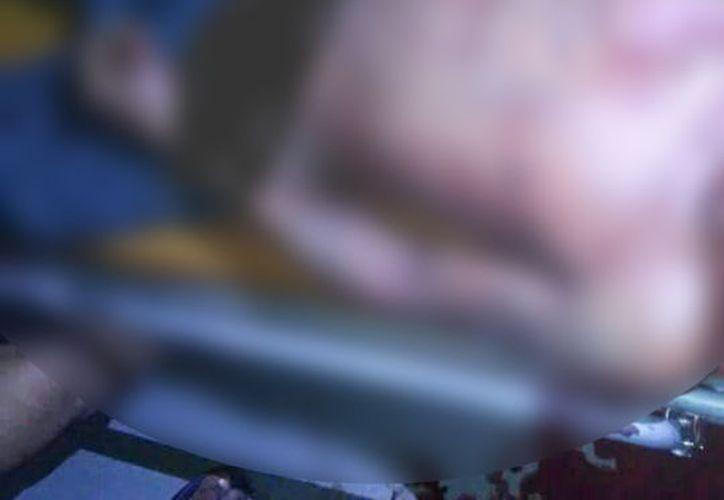 El sujeto fue llevado al centro de salud local pero falleció por la cantidad de sangre que había perdido. (SIPSE)
