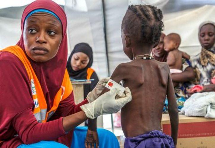 Miles de personas sufren por falta ser servicios básicos y alimentos en Yemen. (NTR Guadalajara)