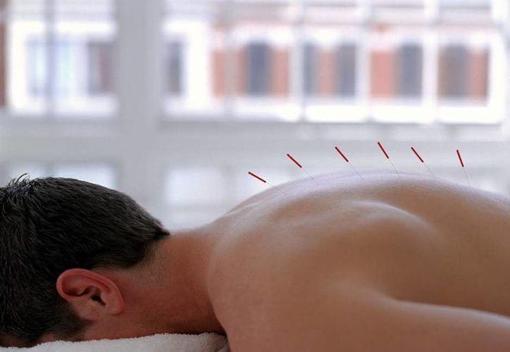 El 9.6 por ciento de los encestados utilizan la acupuntura. (arthritis.org)