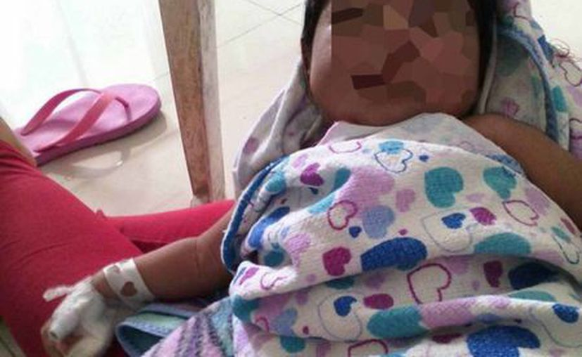 La pequeña Yahani Victoria de apenas un mes con 10 días de nacida, sufre hidrocefalia. (Javier Ortiz/SIPSE)