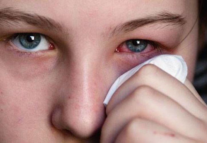Los casos de conjuntivitis han disminuido hasta 15 por ciento respecto al año anterior. (conjuntivitis.org)