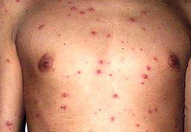 Desde que comenzó el año, se han reportado con varicela a 653 hombres y 508 mujeres. La enfermedad se caracteriza por erupción en la piel y comezón. (Milenio Novedades)