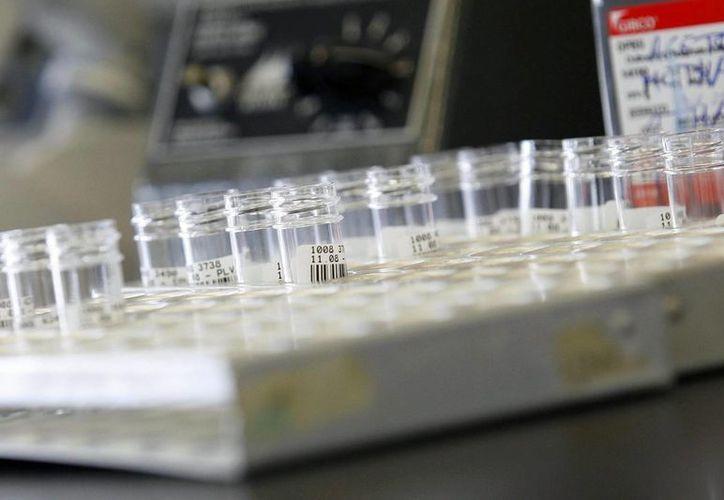 La resistencia a los antibióticos ha aumentado en todas las regiones del mundo, según la OMS. (EFE/Archivo)
