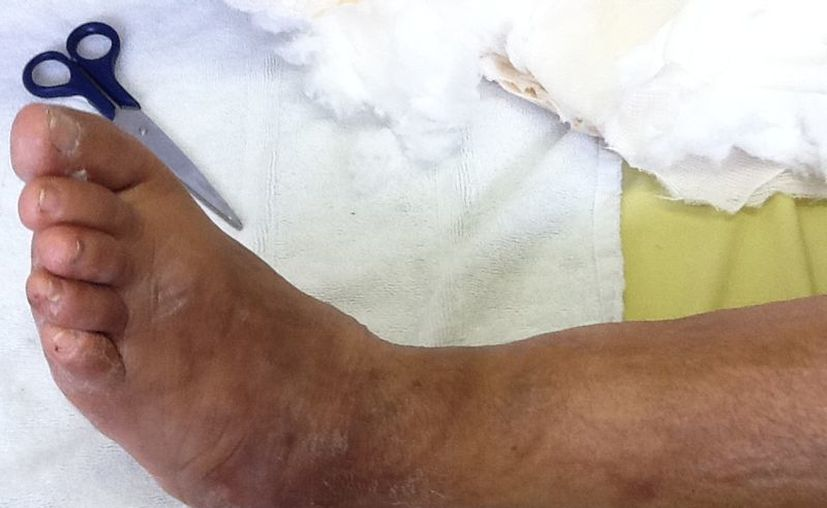 El pie es la parte del cuerpo más propensa a resentir la diabetes. (José Acosta/SIPSE)