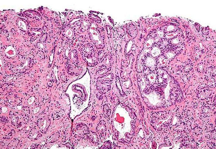 El estudio revela que es posible detectar fácilmente cánceres en la cavidad bucal a través de análisis de saliva y diagnosticar cánceres de laringe, hipofaringe y orofaringe en muestras de sangre. (Excelsior)