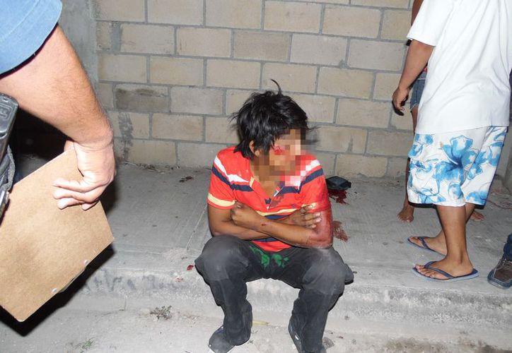 El hombre terminó lesionado de la cabeza tras pasar por una pelea callejera. (Redacción/SIPSE)