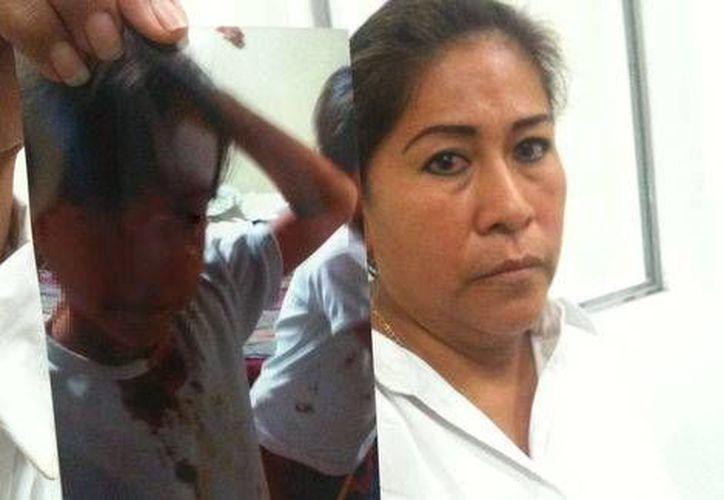 La niña que resultó lesionada en la cabeza presenta dolor de cabeza y vómito, indicó su madre. (Milenio)