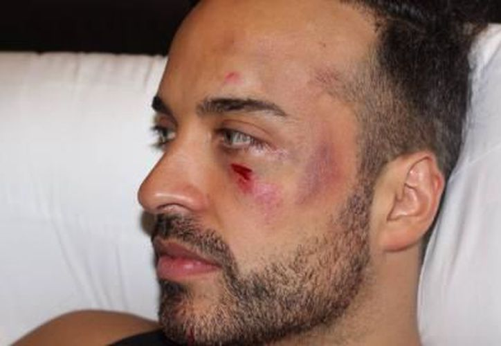 Apio Quijano fue quien resultó más lastimado, con una herida en el pómulo izquierdo. (Staff Kabah)