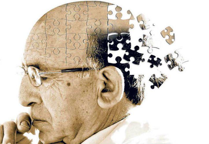 Algunos síntomas se pueden dar antes de los sesenta años. (Foto: Contexto/Internet)