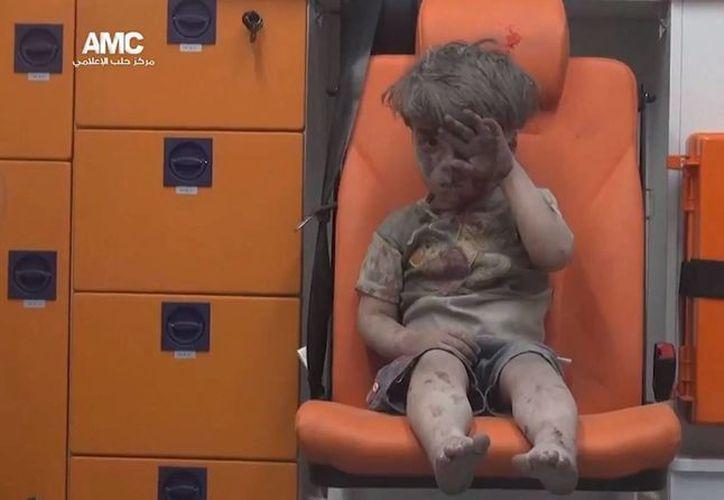La imagen del aturdido niño de cinco año capturó el horror que vive la sitiada ciudad. (EFE)