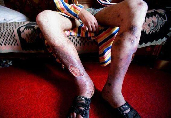 La desomorfina causa severas lesiones cutáneas a los adictos, causándoles la muerte en un plazo de hasta dos años. (Twitter/@DiarioPresente_)