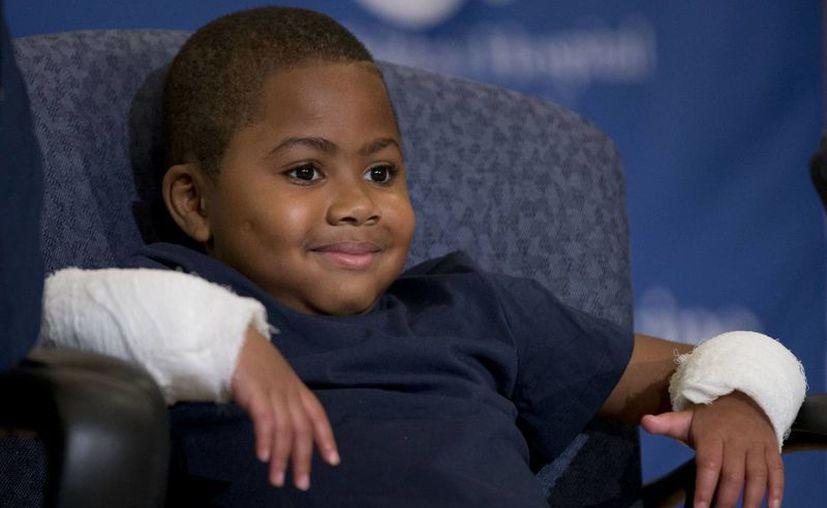 Cirujanos dicen que el pequeño Zion Harvey, quien perdió sus extremidades a causa de una infección, se convirtió en el paciente más joven en recibir un doble trasplante de manos. (AP)