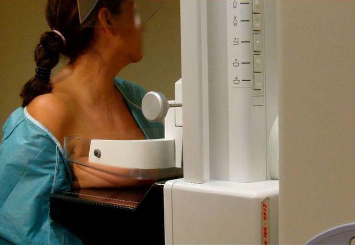 En la presente administración se han realizado 7.5 millones de mastografías. (gacetademexico.com)