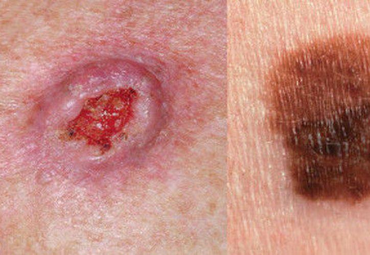 Cáncer de piel deja daño cosmético y emocional.  (Imagen tomada de http://www.elecodigital.com.uy)