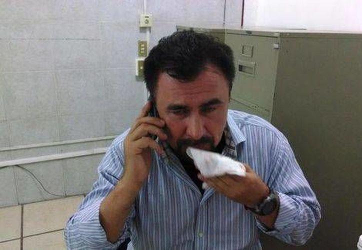 Ramón Antonio Sampayo, legislador del PAN por Tamaulipas denunció que un grupo de priistas lo agredió. (Alejandro Madrigal/Milenio)