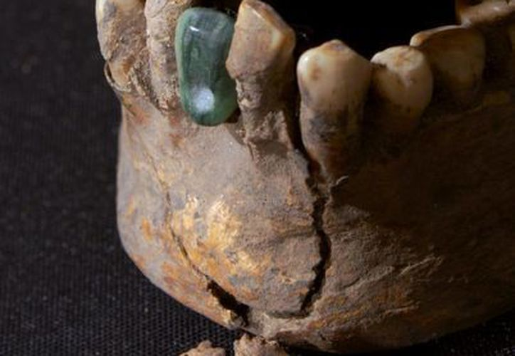 Según los dentistas, el tratamiento odontológico que se encontró en los restos humanos es similar a lo que hoy llamamos endodoncia. Imagen de contexto del cráneo de una persona que vivió hace más de mil 600 años, con una prótesis. (Archivo/Notimex)