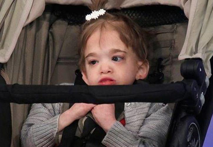 Brooke fue diagnosticada con esa rara enfermedad que también se conoce como 'el síndrome de Benjamin Button'. (YouTube/actualidad.rt)