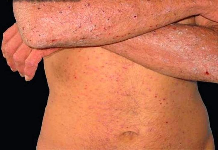 La escabiosis es un mal de la piel que 'se puede presentar en cualquier persona indistintamente de cual sea su raza, edad o higiene personal y se contagia por el contacto directo con individuos infectados'. (Archivo/SIPSE).