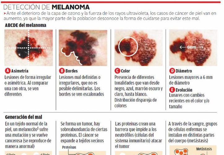 El cáncer de piel aumentó notablemente en los últimos 10 años. (Milenio)