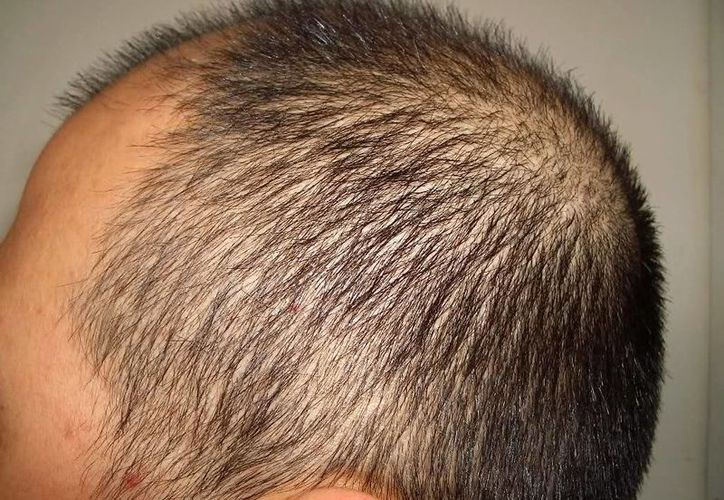 El alimento denominado Gely fit, previene afecciones de articulaciones y crecimiento de cabello y uñas. (hairlosshelp.com)