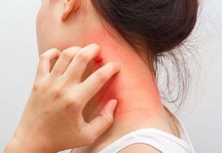 Hay algunas cosas que pueden estar causando la irritación de tu piel. (Elmetropolitanodigital.com)