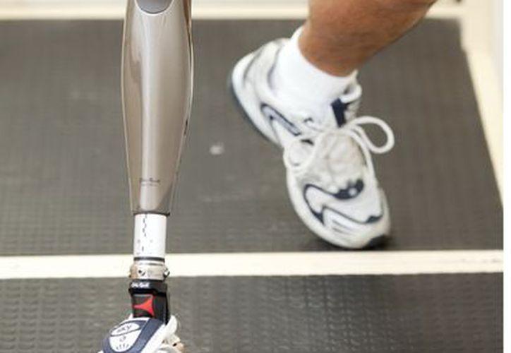 La Ssa también fijará el plazo de entrega de las prótesis. (Agencia Reforma)