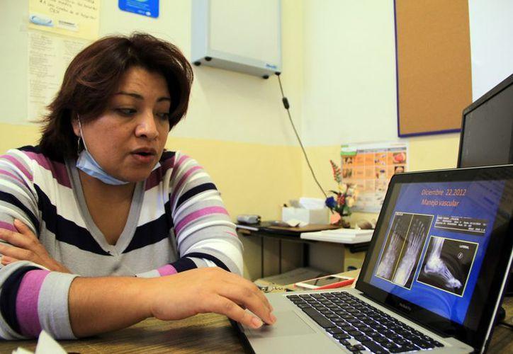 Itzel Caldiño Lozada habló sobre los síntomas que presentan las personas con pie de Charcot. (José Acosta/SIPSE)