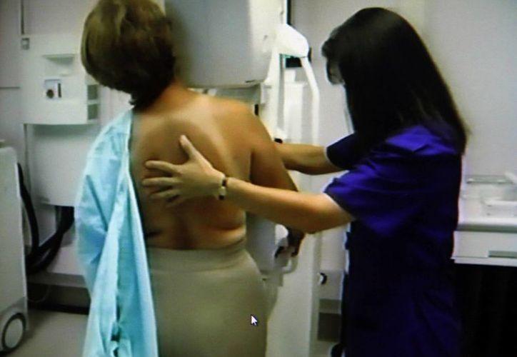 El estudio de mastografía debe ser realizado una vez al año. (Milenio Novedades)