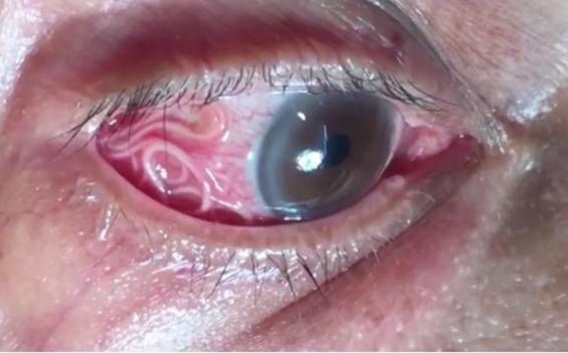 Retiran gusano del ojo de un hombre