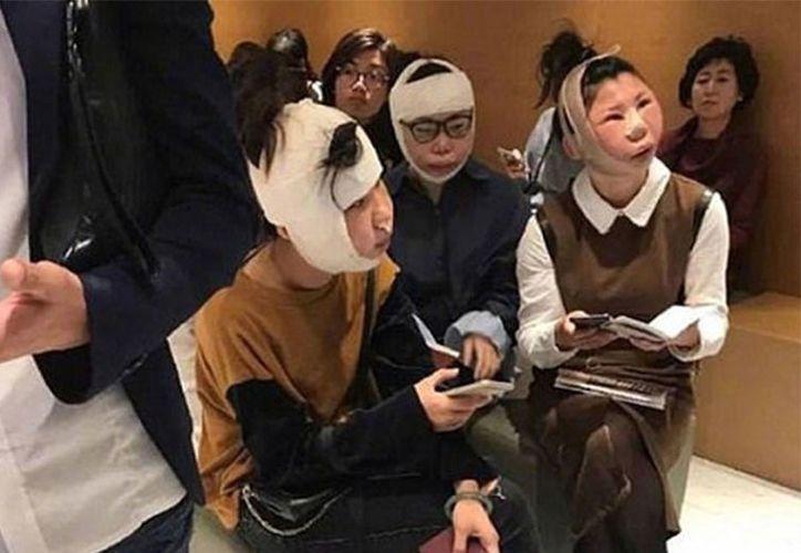 El trío de chinas, se estaba recuperando de sus operaciones con las caras hinchadas.