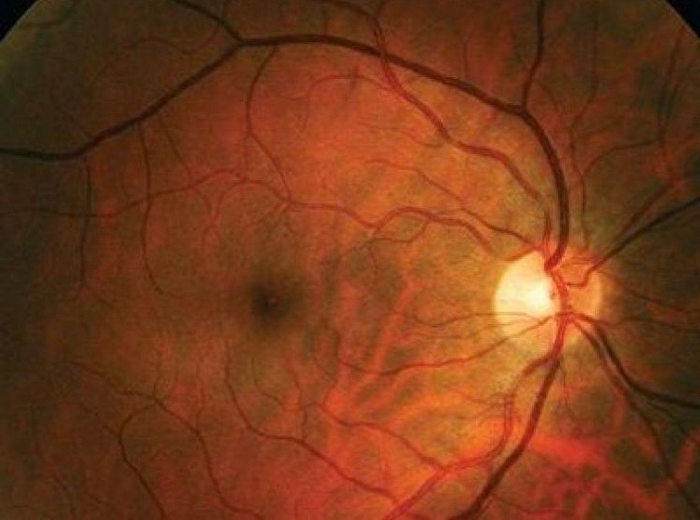 Óptica es neuropatía grave la