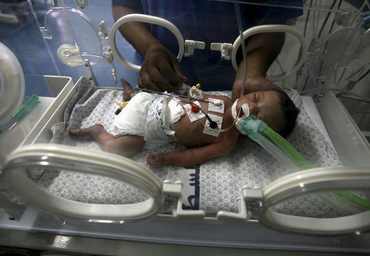 La pequeña permanecerá bajo cuidados intensos en el hospital. (AP)