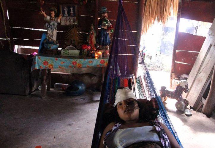 María Liliana Ucán Ku está convencida de que Dios y la Virgen de Guadalupe les hicieron el milagro de sobrevivir al accidente en Campeche. (José Acosta/SIPSE)